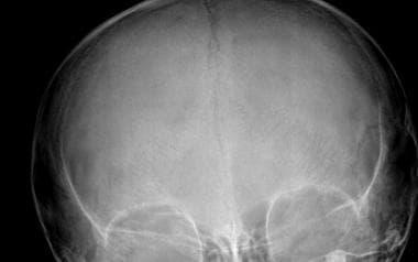 Osteogenesis imperfecta (OI). Corresponding antero