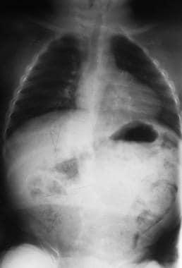 Mild juvenile scoliosis.