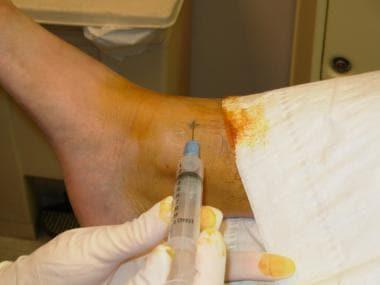 Saphenous nerve anesthetization site.