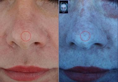 Emage Medical Image Pro II normal (left) and ultra