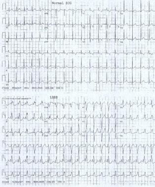 ECGs show a normal sinus rhythm and a sinus rhythm