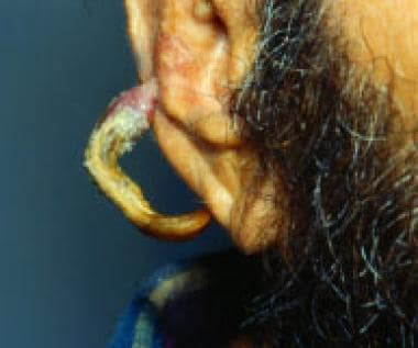 An unusually large cutaneous horn extending from t