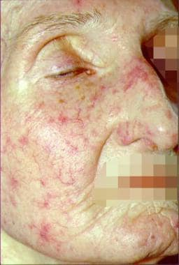 Telangiectasia of the face.