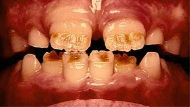 Enamel hypoplasia of the incisal half of the maxil