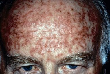Actinic keratosis right after treatment with topic