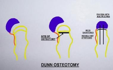 Principle of the Dunn osteotomy. Reduction of the