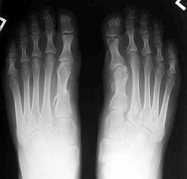 Radiograph depicting a patient who had a history o