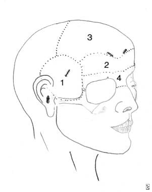 The upper part of the subperiosteal facelift (endo