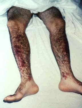 A middle-aged man with a history of intravenous dr