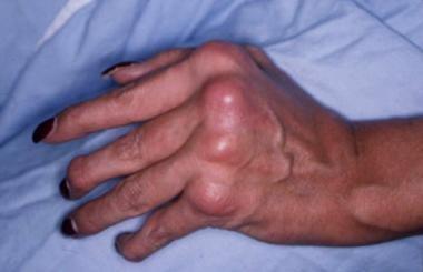 Swelling and deformity of the metacarpophalangeal