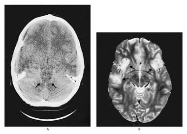 Left image of a CT scan of an 8-year-old boy with