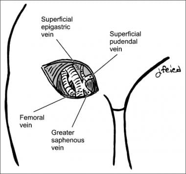 Saphenofemoral junction.