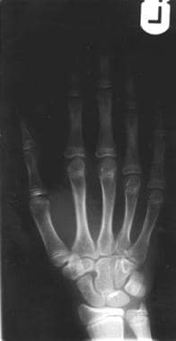Plain radiograph of the left hand of a 10-year-old