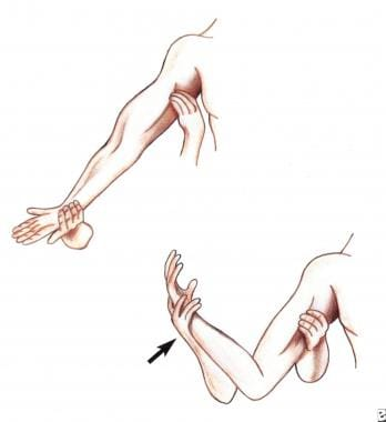 Passive flexion of the forearm reduces the baselin