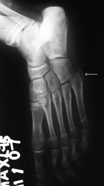 Osteochondrosis of the base of the fifth metatarsa