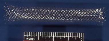 An intravascular stent used in the creation of a p
