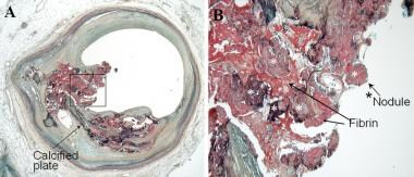 Calcified nodule. A: There is an eccentric plaque