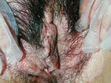 Benign vulvar lesions. Lichen sclerosus.