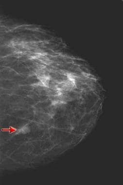 Prebiopsy craniocaudal mammogram demonstrates a 1-