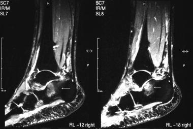 Calcaneus, fractures. Short-tau inversion recovery