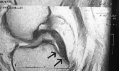 Proton-dense sagittal image demonstrates the norma