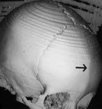 Trigonocephaly. Oblique view of the skull shows a