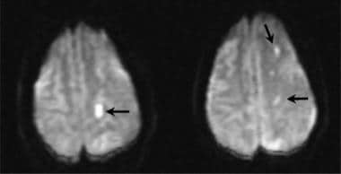 Axial T1-weighted echo-planar diffusion image in a