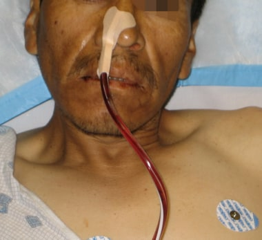 Secured nasogastric tube.