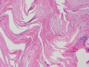 Medium power view of the mixed hyperparakeratosis