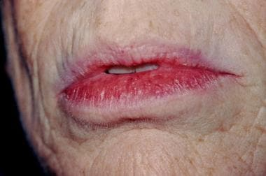 Note the fullness of the lower portion of the lip