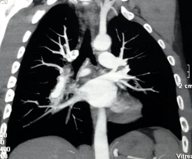 CT angiogram showing pulmonary artery aneurysm in