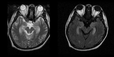 Paraneoplastic encephalomyelitis.