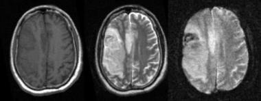 This MRI reveals hemorrhagic transformation of an