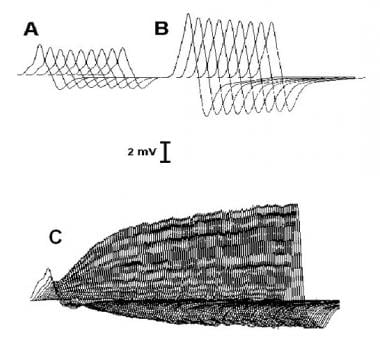 Characteristic responses to repetitive nerve stimu