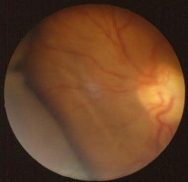 Serous choroidal detachment. Two lobes (ie, supert