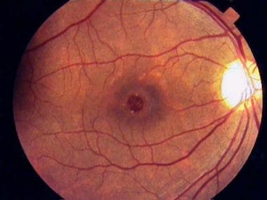 Full-thickness macular hole with typical yellowish