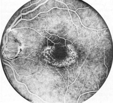 Fluorescein angiogram of left macula in patient wi