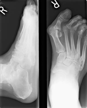Preoperative radiograph shows arthrodesis.
