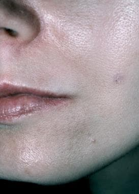 Photograph before collagen injection.