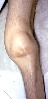 Older adult man with chronic fused extended knee f