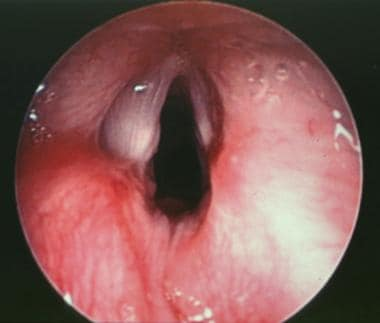 Postoperative close up view of the true vocal cord