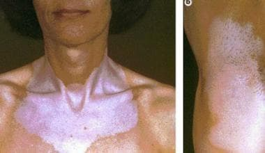 Left photograph shows vitiligo in a patient with a