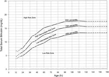 Hour-specific nomogram for total serum bilirubin a
