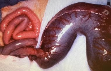 Colonic atresia. This huge, dilated colon will nev