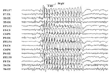 Typical 3-Hz electroencephalographic spike and wav