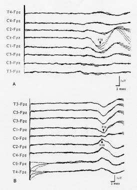 Cortical somatosensory evoked potentials (SEPs) to