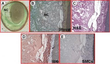 A nonhemodynamically limiting thin-cap fibroathero