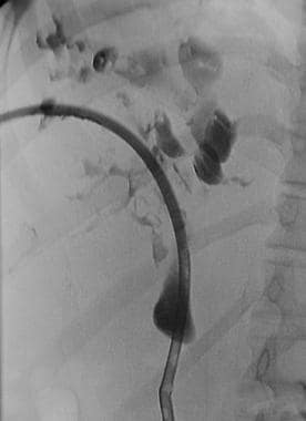 Percutaneous transhepatic cholangiographic image o