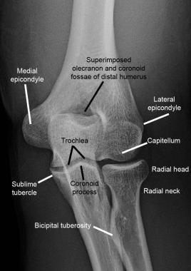 Normal elbow. Normal anteroposterior (AP) radiogra