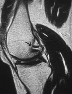 Sagittal T2-weighted image shows the normal femora